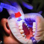 Zła metoda odżywiania się to większe braki w ustach oraz również ich brak